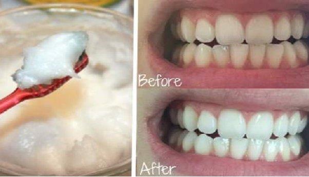 Cena izbeljivanje zuba